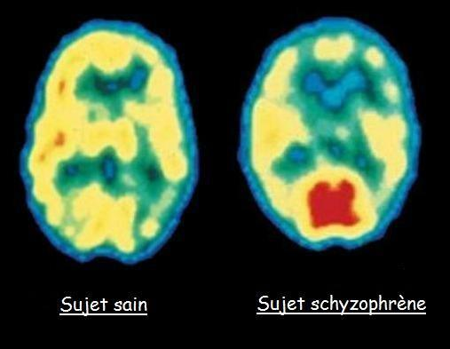 Schizophrénie observée par Pet-scan